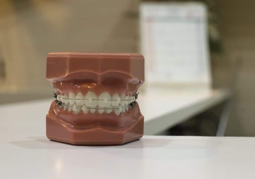 牙齒矯正(傳統矯正)牙套